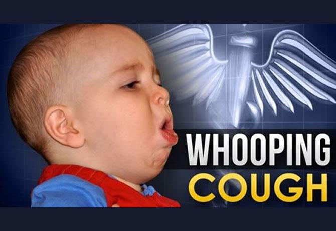 百日咳 - Whooping coughにご注意