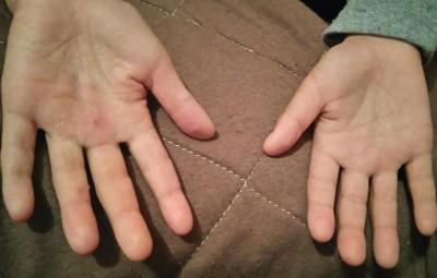 子供のアレルギー 汗疱 病院